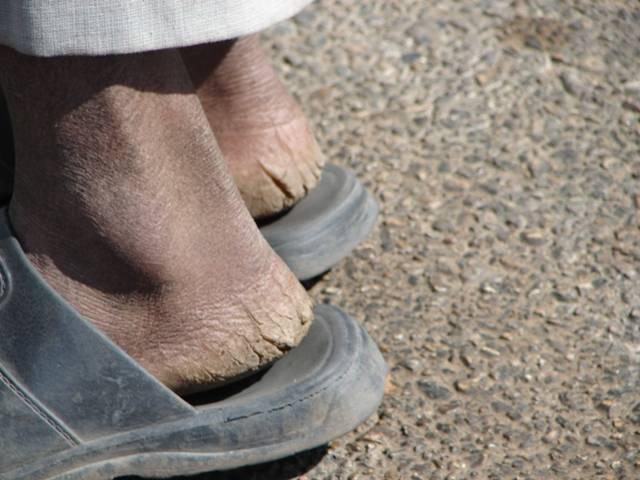 для картинка сланец на ногу бразилии раз